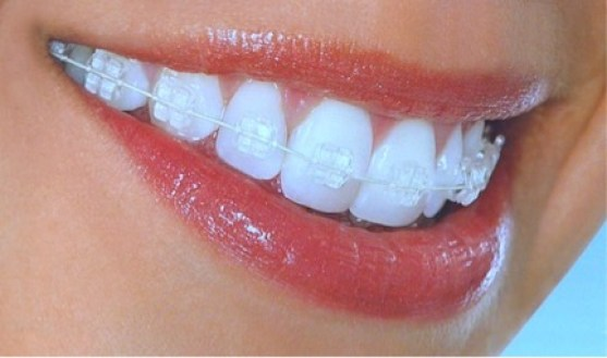 Clear Braces, Invisible Braces, or Invisalign